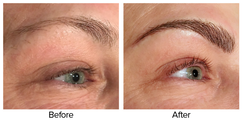 Microblading Before After The Ritz Salon 01 The Ritz